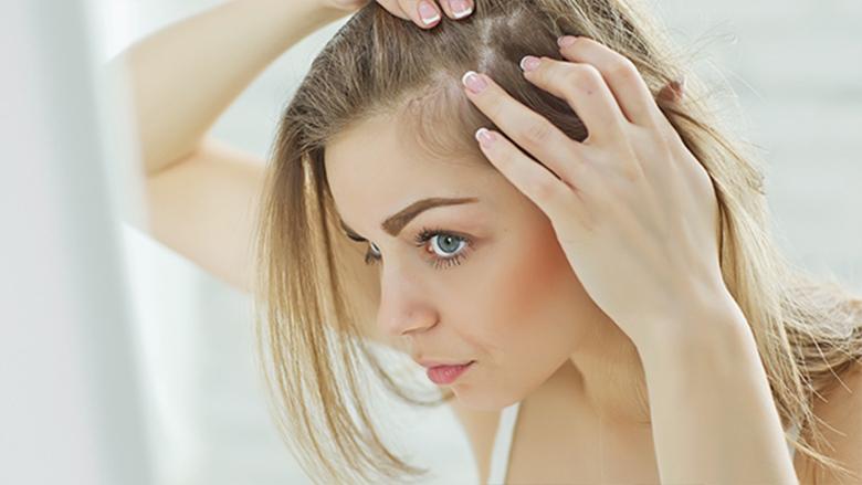 Kadınlarda Saç Dökülmesi ve Tedavisi